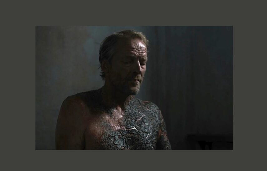 Jorah, with his Greyscale spreading further